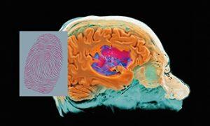 Ziel der MR-Fingerabdruck-Methode ist es, einzelne Gewebe und Erkrankungen zu identifizieren, ähnlich der Erkennung von menschlichen Fingerabdrücken in der Forensik. Während in der Forensik der Abgleich des Fingerabdrucks zu den Kennzeichen der zugehörigen Person führt (Name, Größe, Gewicht, Augenfarbe, Geburtsdatum etc.), sind im MRF-Lexikon die MR-bezogenen Gewebeinformationen hinterlegt. MR Fingerprinting is designed to specifically identify individual tissues and diseases, similar to that identify a human fingerprint in forensics. In the forensic case, each fingerprint points to the feature identification of the associated person such as name, height, weight, eye color, date of birth, etc. In the case of MRF, each fingerprint points to the quantified MR related identification features of the associated tissue.
